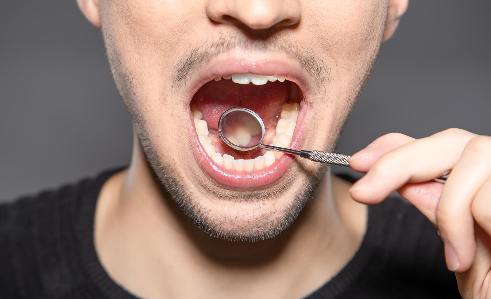¿Qué sucede en nuestra boca cuando vapeamos?